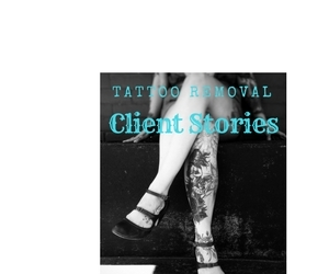 Client Tattoo Removal Stories